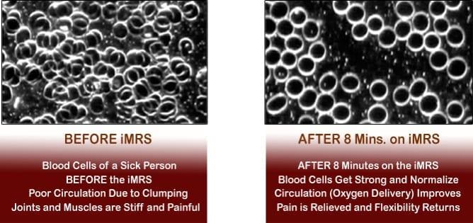 Blood cells after 8 minute PEMF treatment- PEMF Health Inc.