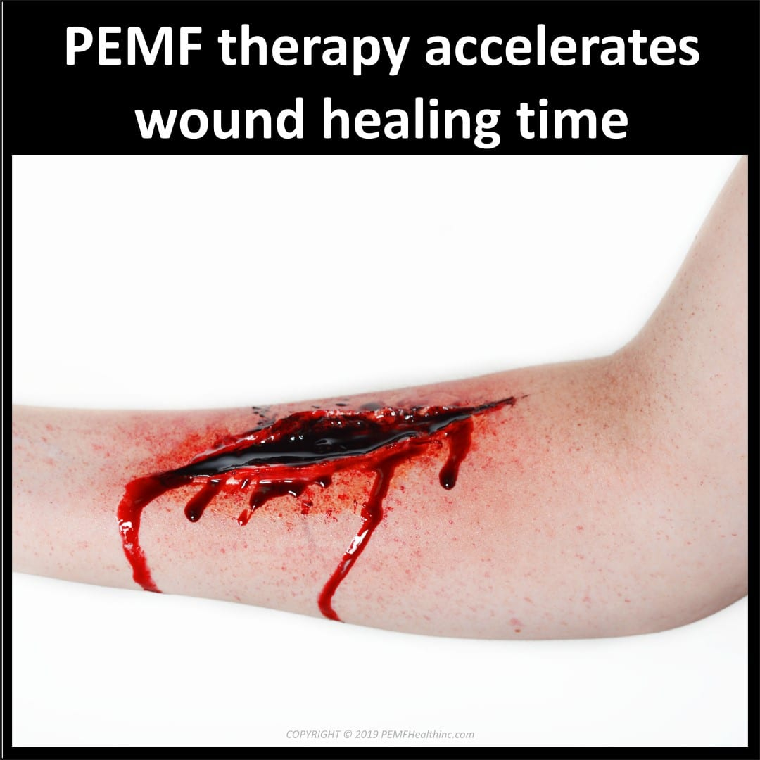 PEMF therapy accelerates wound healing- PEMF Health Inc.