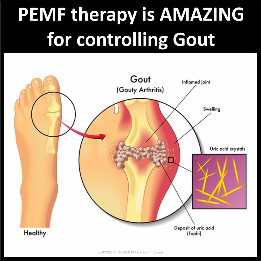 PEMF therapy for Gout- PEMF Health Inc.